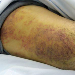 重症例:自転車の転倒による大腿部の打撲