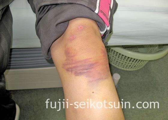 交通事故による負傷