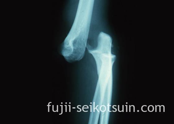 肘関節後方脱臼のレントゲン写真