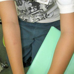 肘関節外顆骨折 (右肘:健側(良い方) 左肘:患側(痛めた方))