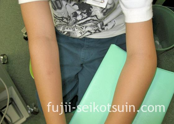 肘関節外顆骨折1