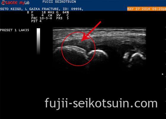 肘関節外顆骨折 エコー1