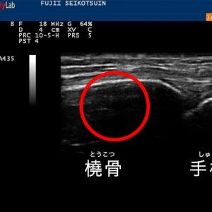 健側(負傷していない左手)のエコー画像