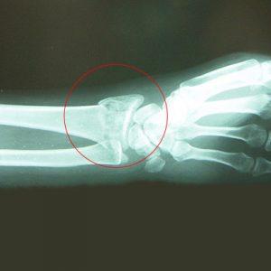 スノーボードでの転倒による手首の骨折