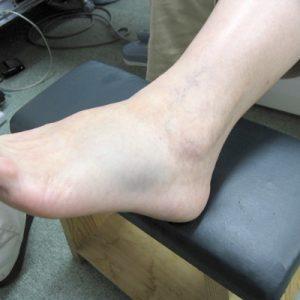 足の骨折外観写真