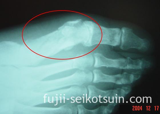 第1中足骨骨折レントゲン写真