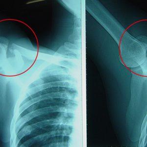 スノーボードでの転倒による鎖骨の骨折