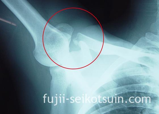 鎖骨骨折2