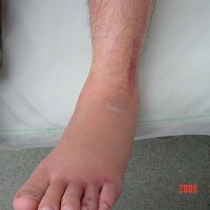 左足腓骨遠位部骨折 初診時の患部写真