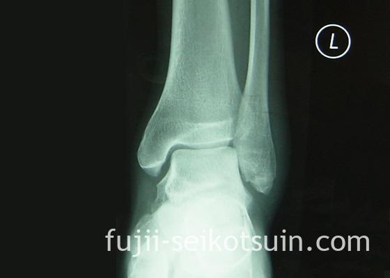 左足腓骨遠位部の骨折のレントゲン写真