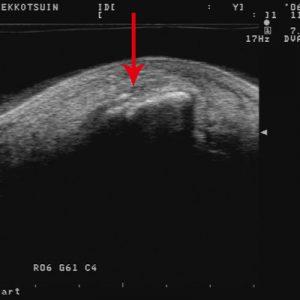 左足腓骨遠位部骨折 初診時のエコー写真