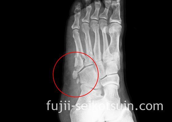 img_injury01