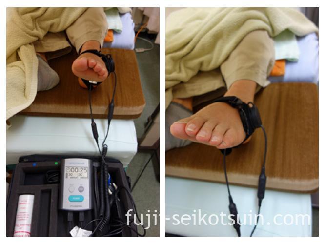 超音波骨折治療器を当てているところ