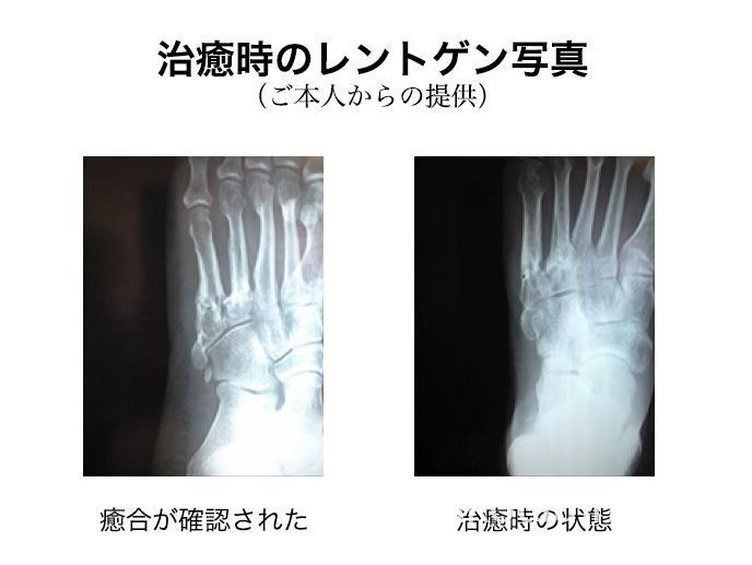 骨折癒合確認:治癒時(ご本人提供)