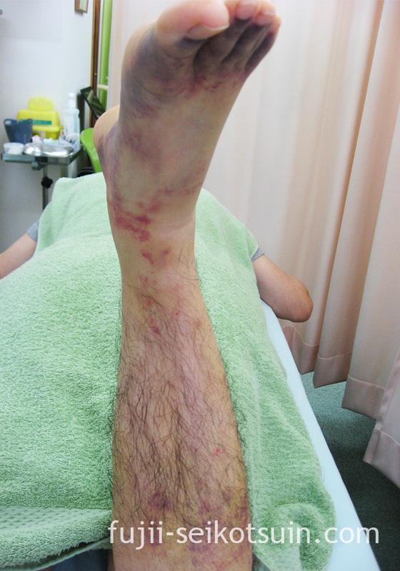 下腿(ふくらはぎ)の挫傷(肉ばなれ)