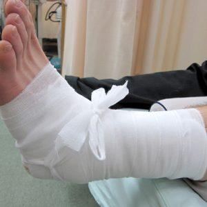 習慣性の捻挫 包帯固定