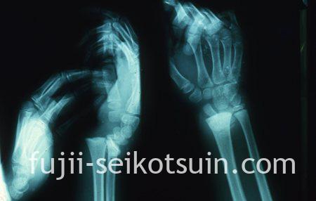 右手首:橈骨骨端線での完全骨折(整復前)