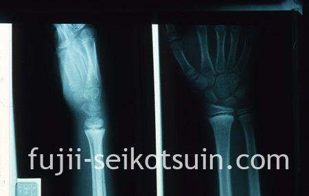 右手首:橈骨骨端線での完全骨折(整復後)